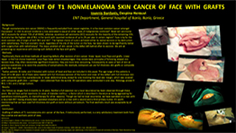 Τreatment of T1 nonmelanoma skin cancer of face with grafts
